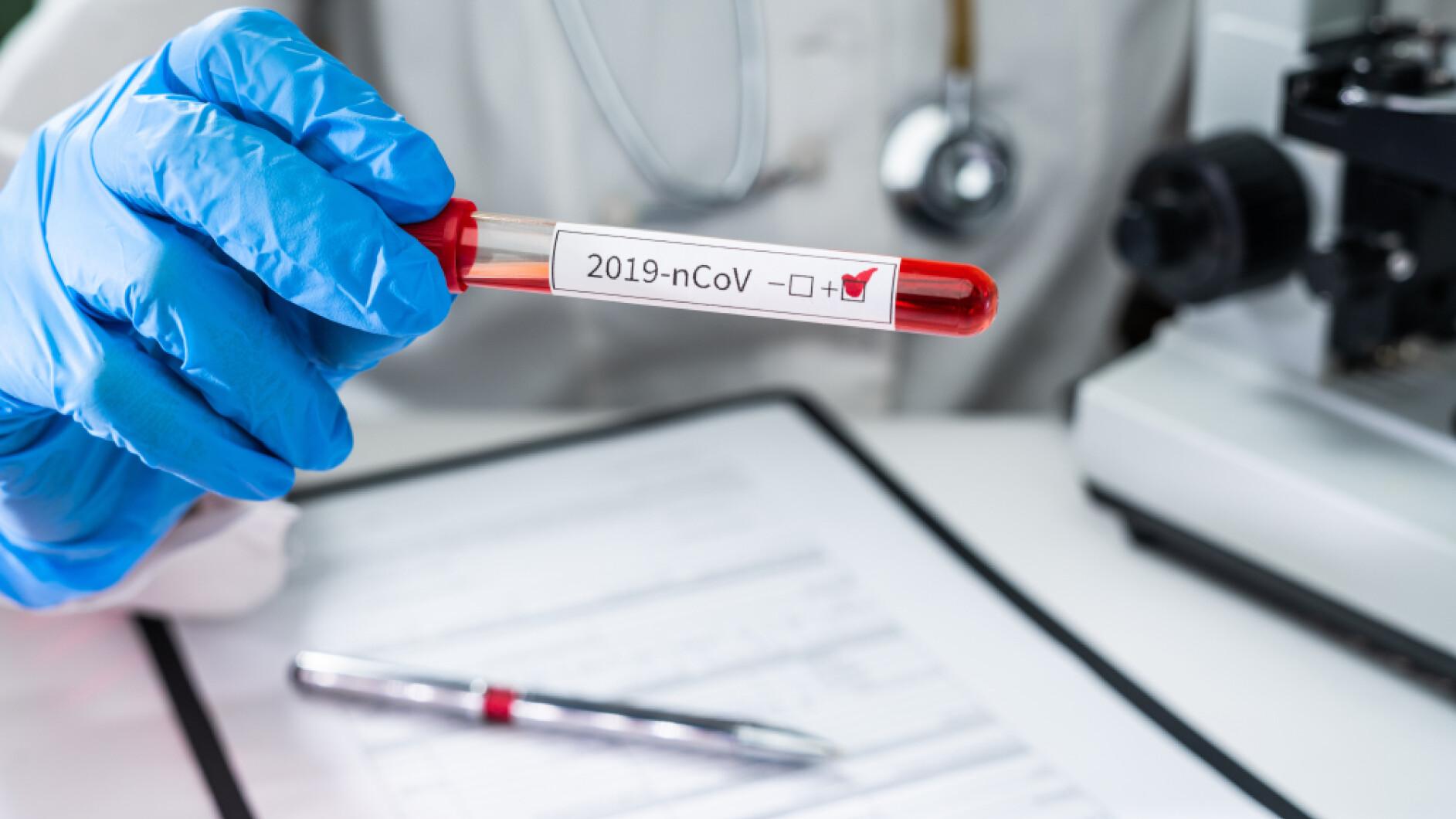 stand-freitag-coronavirus-114-intensivpatienten-in-n