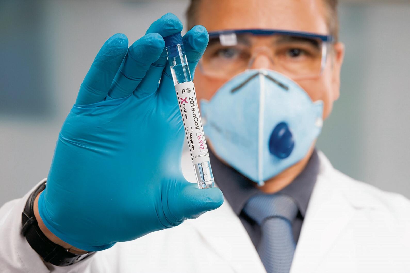 Antikörperstudie