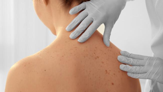 Hautarzt Haut Medizin Gesundheit Symbolbild